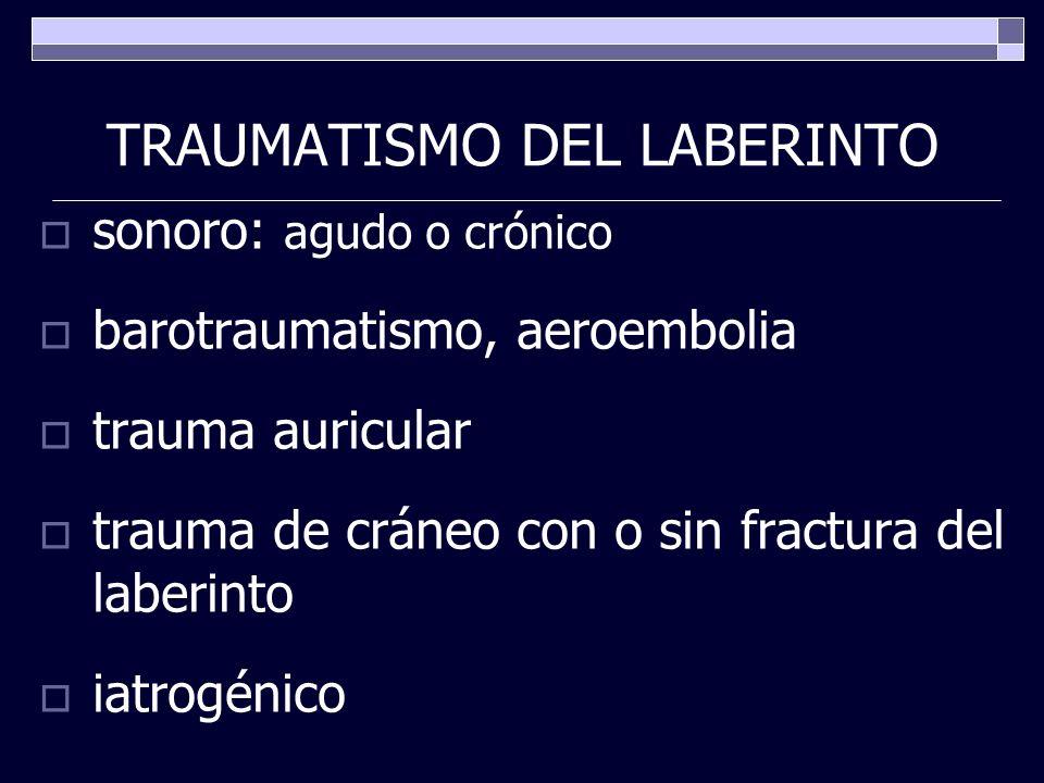 TRAUMATISMO DEL LABERINTO sonoro: agudo o crónico barotraumatismo, aeroembolia trauma auricular trauma de cráneo con o sin fractura del laberinto iatr