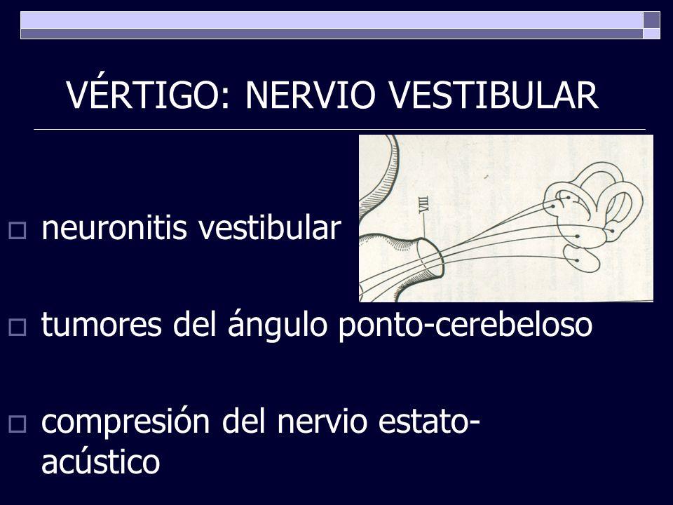 VÉRTIGO: NERVIO VESTIBULAR neuronitis vestibular tumores del ángulo ponto-cerebeloso compresión del nervio estato- acústico