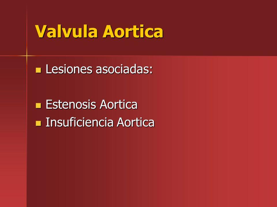 Valvula Aortica Lesiones asociadas: Lesiones asociadas: Estenosis Aortica Estenosis Aortica Insuficiencia Aortica Insuficiencia Aortica