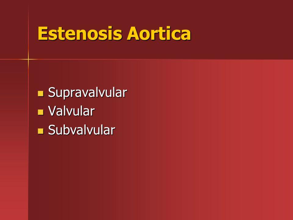Estenosis Aortica Supravalvular Supravalvular Valvular Valvular Subvalvular Subvalvular