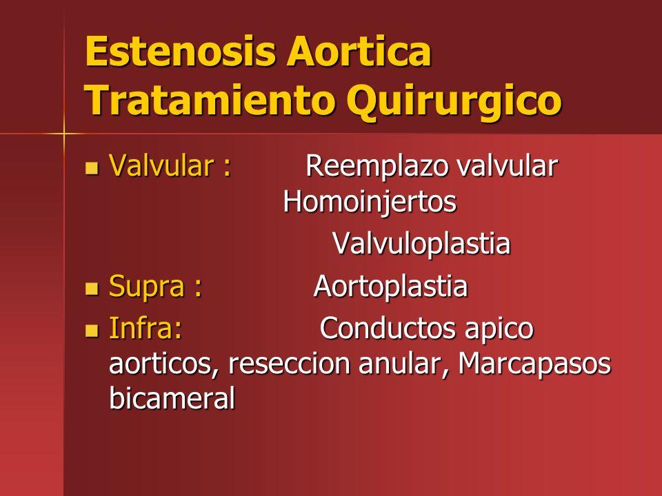 Estenosis Aortica Tratamiento Quirurgico Valvular : Reemplazo valvular Homoinjertos Valvular : Reemplazo valvular Homoinjertos Valvuloplastia Valvulop