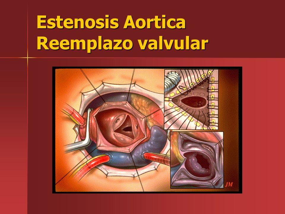 Estenosis Aortica Reemplazo valvular