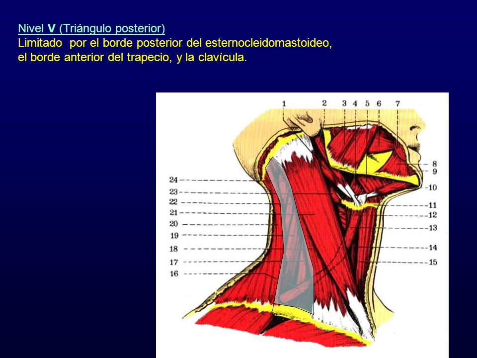 Nivel V (Triángulo posterior) Limitado por el borde posterior del esternocleidomastoideo, el borde anterior del trapecio, y la clavícula.