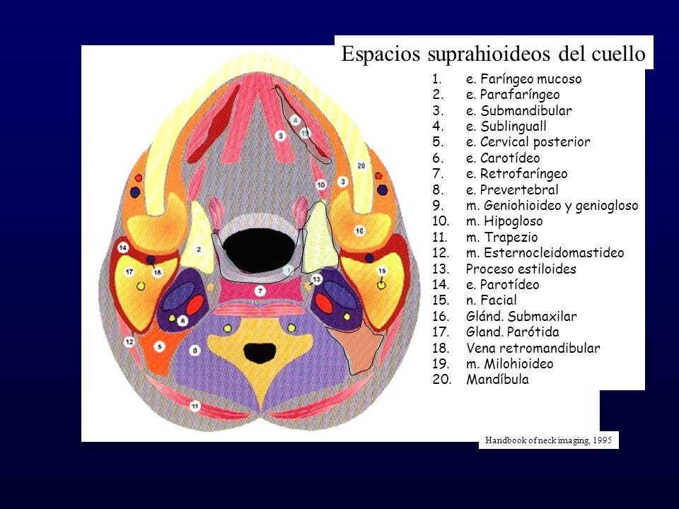 Espacios suprahioideos del cuello 1.e. Faríngeo mucoso 2.e. Parafaríngeo 3.e. Submandibular 4.e. Sublinguall 5.e. Cervical posterior 6.e. Carotídeo 7.