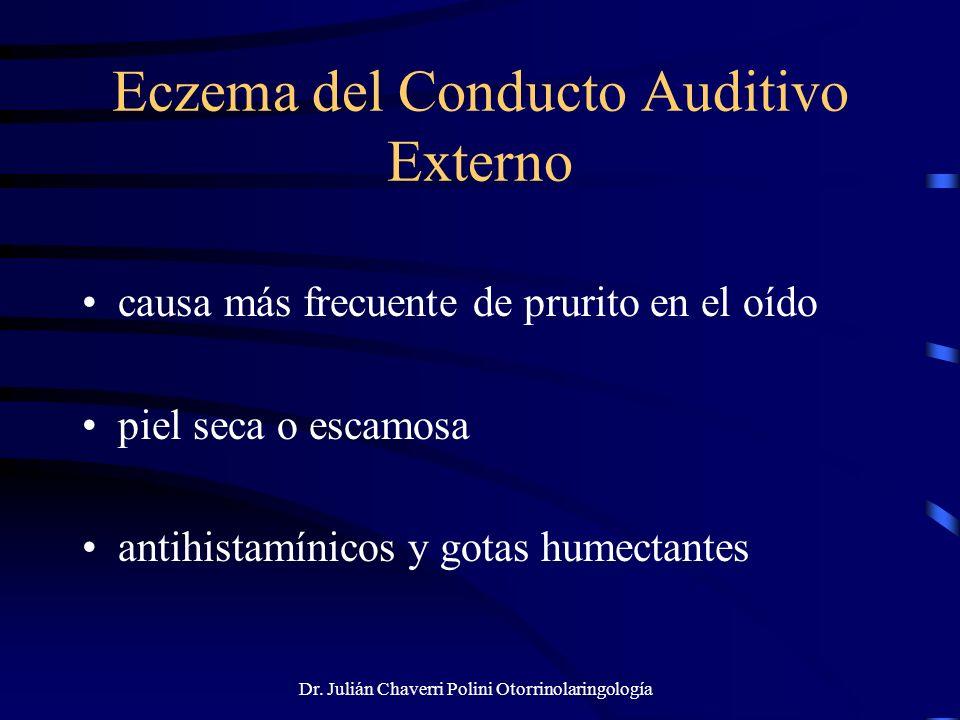 Dr. Julián Chaverri Polini Otorrinolaringología Eczema del Conducto Auditivo Externo causa más frecuente de prurito en el oído piel seca o escamosa an