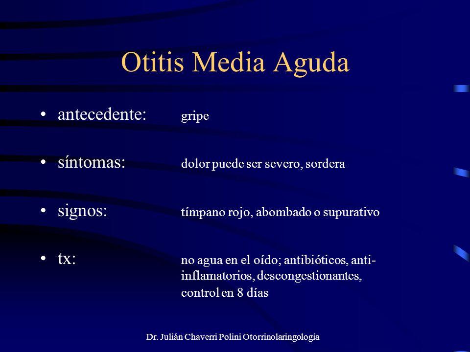 Dr. Julián Chaverri Polini Otorrinolaringología Otitis Media Aguda antecedente: gripe síntomas: dolor puede ser severo, sordera signos: tímpano rojo,