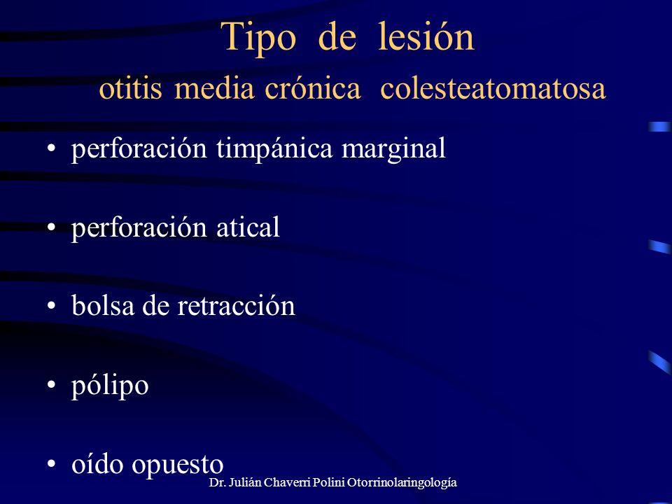 Dr. Julián Chaverri Polini Otorrinolaringología Tipo de lesión otitis media crónica colesteatomatosa perforación timpánica marginal perforación atical
