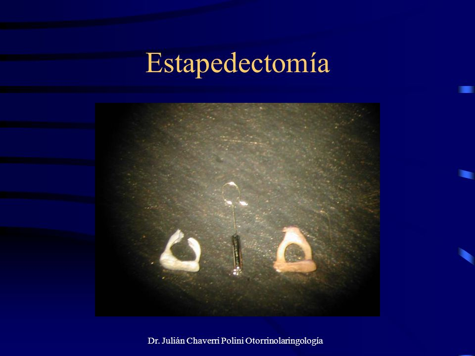 Dr. Julián Chaverri Polini Otorrinolaringología Estapedectomía
