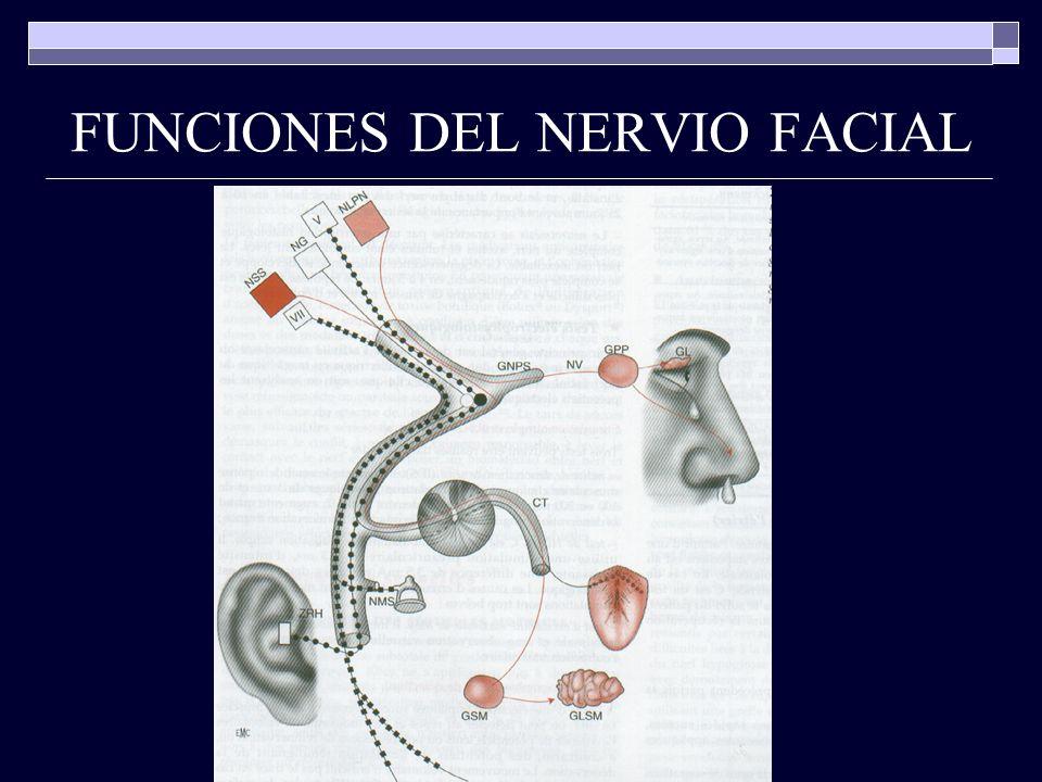 PARALISIS DE BELL causa más frecuente de parálisis facial 85 % de los casos diagnóstico de exclusión criterios: inicio súbito paresia o parálisis de todo un grupo muscular de al menos un lado de la cara ausencia de signos otológicos ausencia de signos del sistema nervioso central
