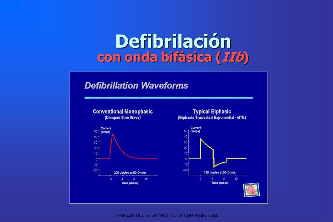 Defibrilación con onda bifásica (IIb) IMAGEN DEL SITIO WEB DE LA COMPAÑÍA ZOLL