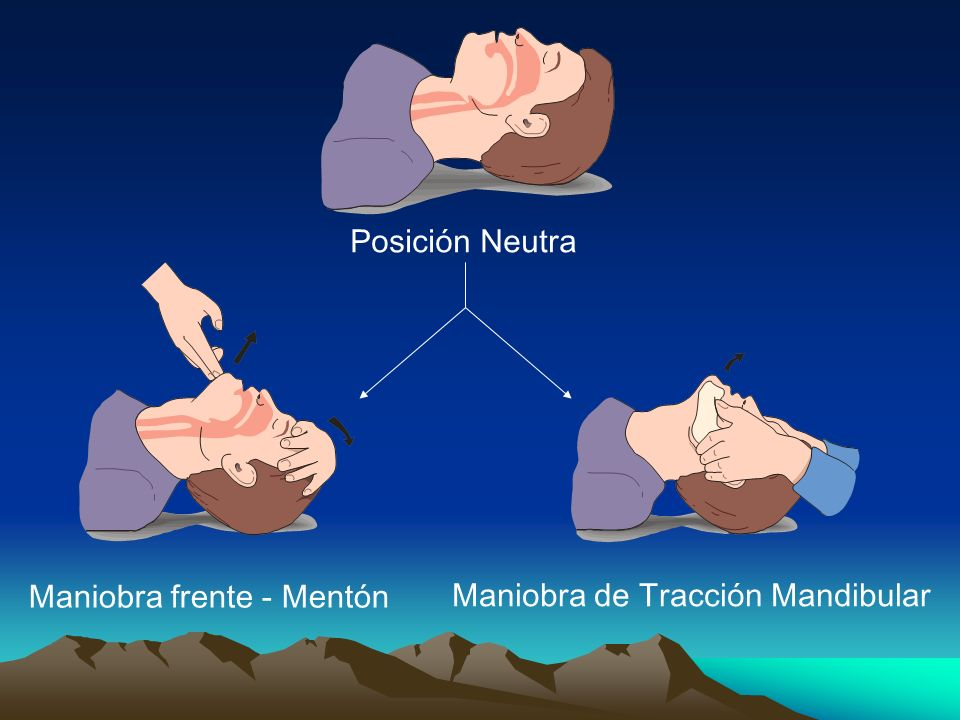 Maniobra frente - Mentón Maniobra de Tracción Mandibular Posición Neutra
