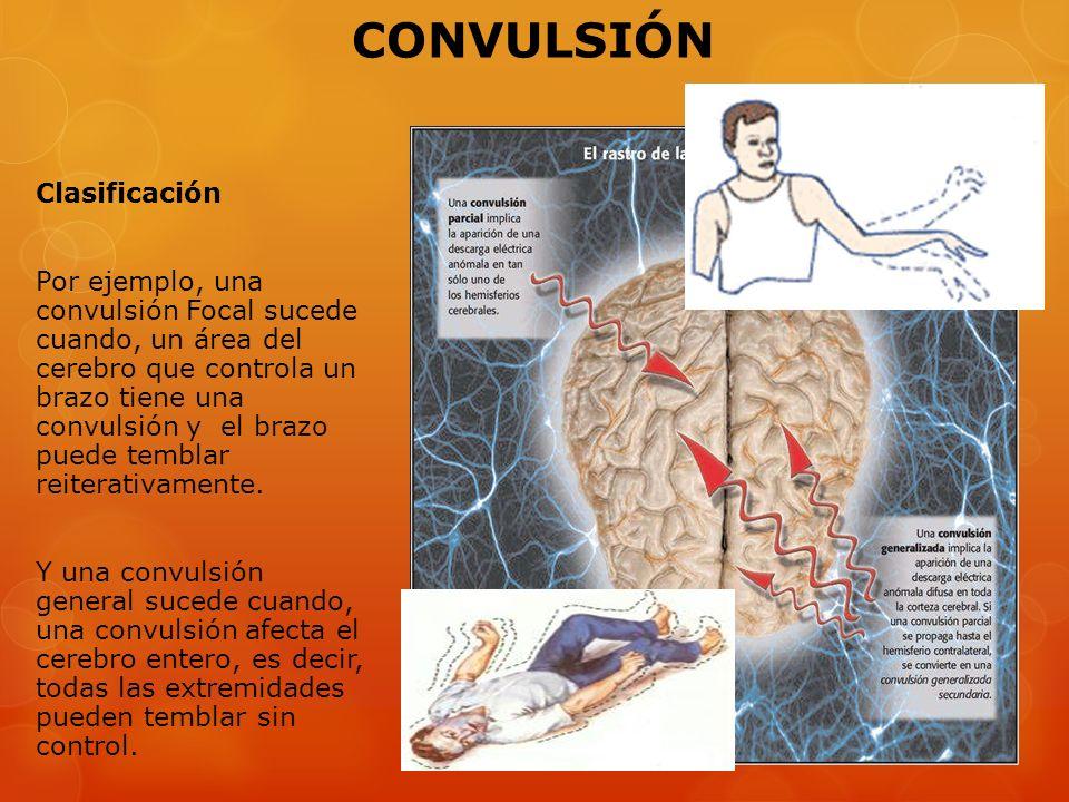 Clasificación Por ejemplo, una convulsión Focal sucede cuando, un área del cerebro que controla un brazo tiene una convulsión y el brazo puede temblar