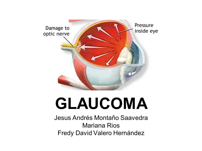 GLAUCOMA PRIMARIO DE ANGULO ABIERTO Tipo más común de glaucoma Se caracteriza por ser una neuropatia lentamente progresiva que lleva a la excavación de la cabeza del nervio óptico y a la atrofia consiguiente.