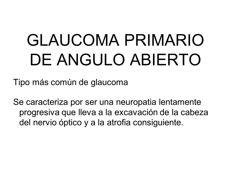 GLAUCOMA PRIMARIO DE ANGULO ABIERTO Tipo más común de glaucoma Se caracteriza por ser una neuropatia lentamente progresiva que lleva a la excavación d