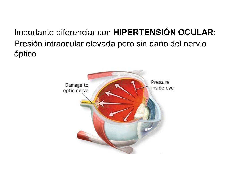 Importante diferenciar con HIPERTENSIÓN OCULAR: Presión intraocular elevada pero sin daño del nervio óptico