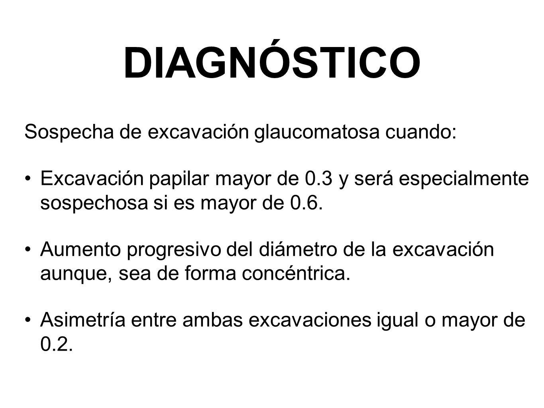 DIAGNÓSTICO Sospecha de excavación glaucomatosa cuando: Excavación papilar mayor de 0.3 y será especialmente sospechosa si es mayor de 0.6. Aumento pr