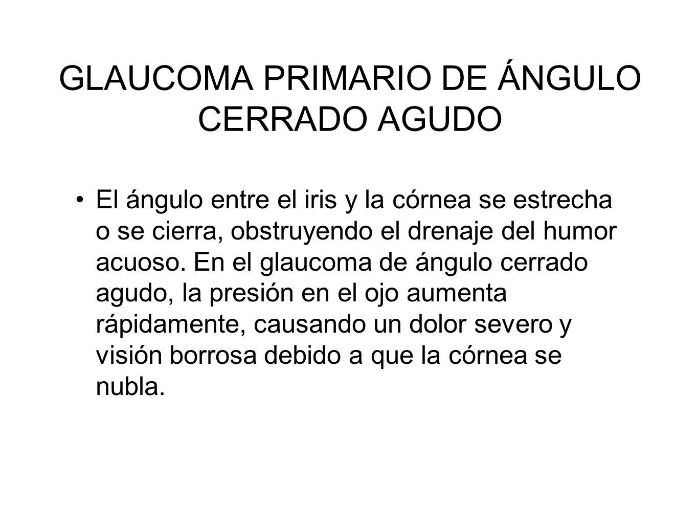 GLAUCOMA PRIMARIO DE ÁNGULO CERRADO AGUDO El ángulo entre el iris y la córnea se estrecha o se cierra, obstruyendo el drenaje del humor acuoso. En el