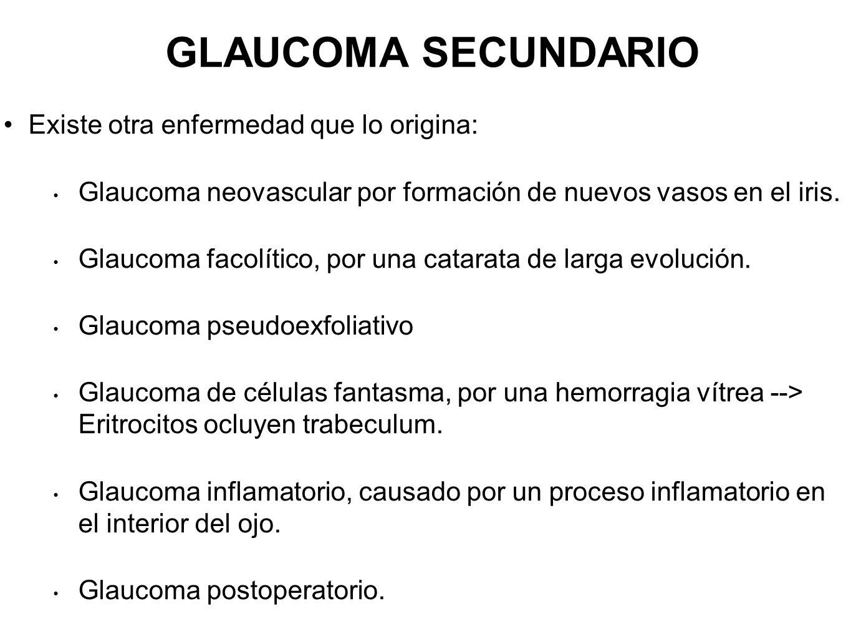 GLAUCOMA SECUNDARIO Existe otra enfermedad que lo origina: Glaucoma neovascular por formación de nuevos vasos en el iris. Glaucoma facolítico, por una