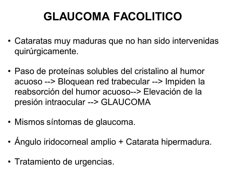 GLAUCOMA FACOLITICO Cataratas muy maduras que no han sido intervenidas quirúrgicamente. Paso de proteínas solubles del cristalino al humor acuoso -->