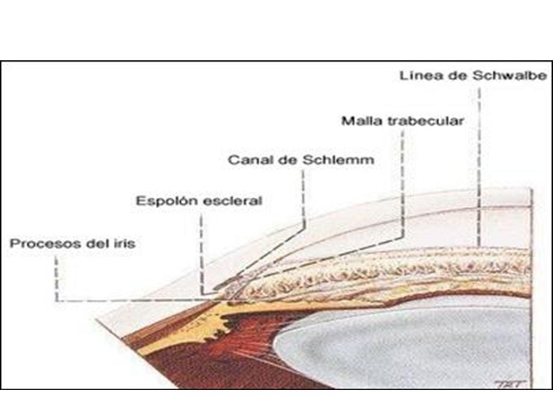 Síntomas en GPACA Dolor severo en el ojo Cefalea Nausea, vómito Dilatación leve- moderada pupila Ojo rojo Visión borrosa Halos alrededor de las luces.