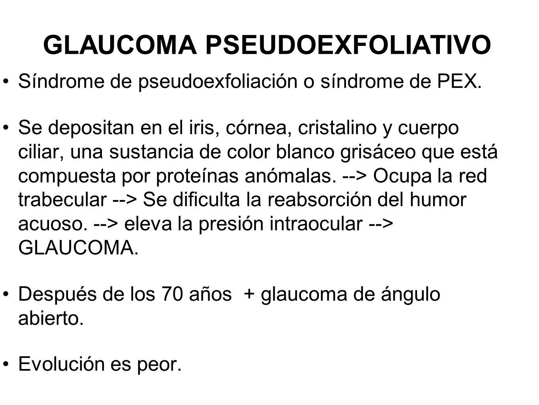 GLAUCOMA PSEUDOEXFOLIATIVO Síndrome de pseudoexfoliación o síndrome de PEX. Se depositan en el iris, córnea, cristalino y cuerpo ciliar, una sustancia