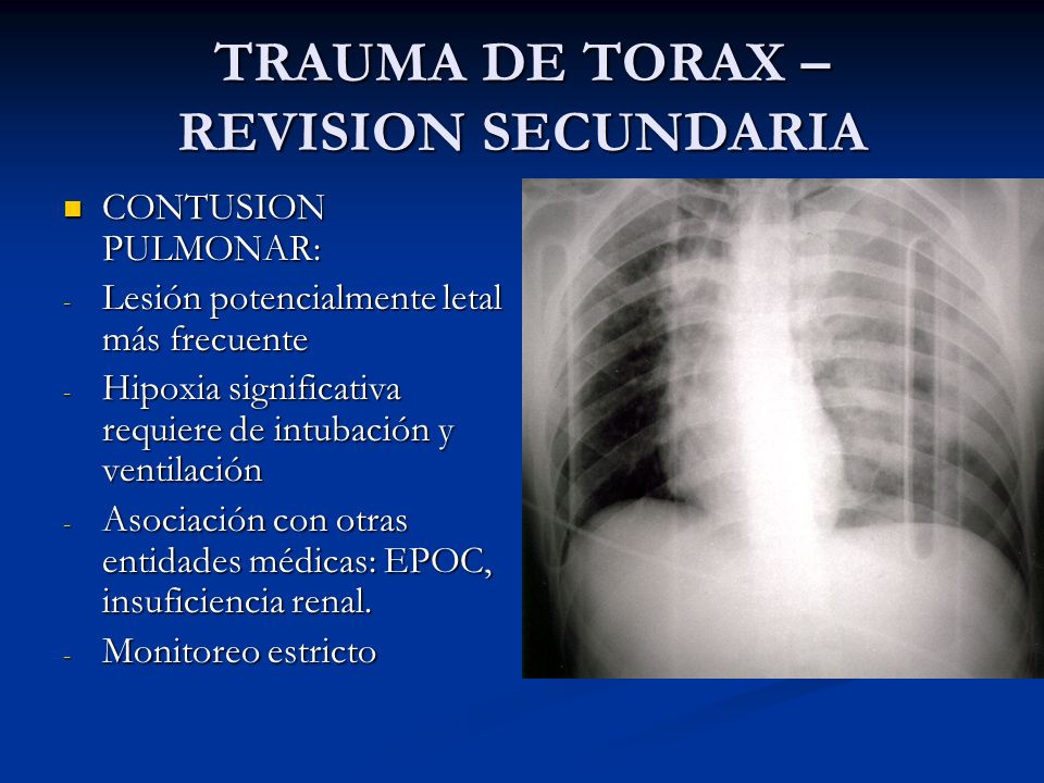 TRAUMA DE TORAX – REVISION SECUNDARIA CONTUSION PULMONAR: CONTUSION PULMONAR: - Lesión potencialmente letal más frecuente - Hipoxia significativa requ