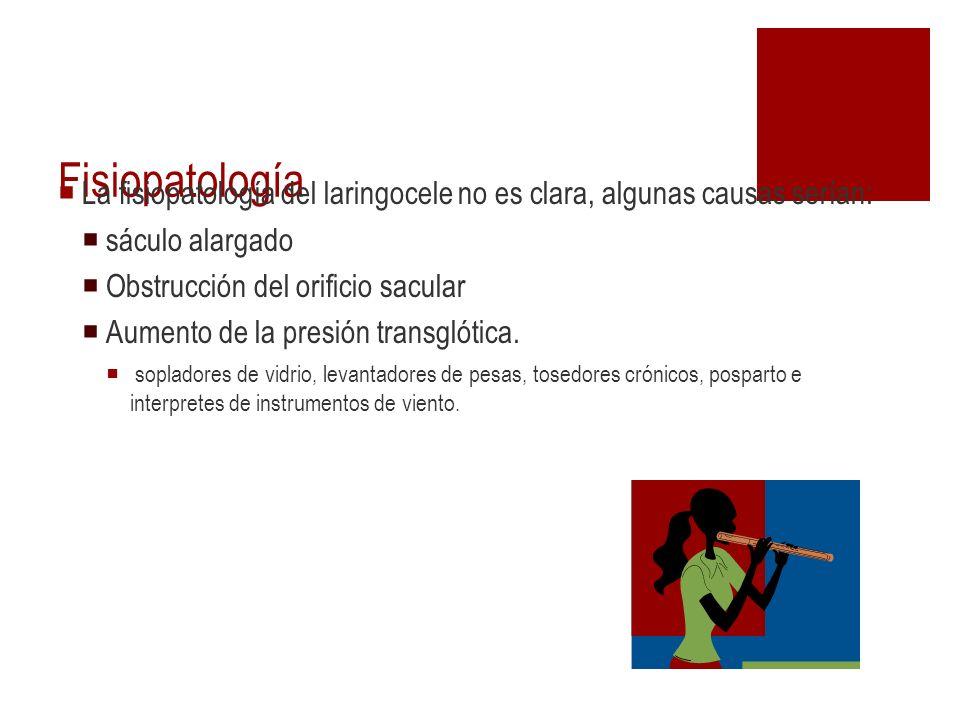 Fisiopatología La fisiopatología del laringocele no es clara, algunas causas serían: sáculo alargado Obstrucción del orificio sacular Aumento de la pr