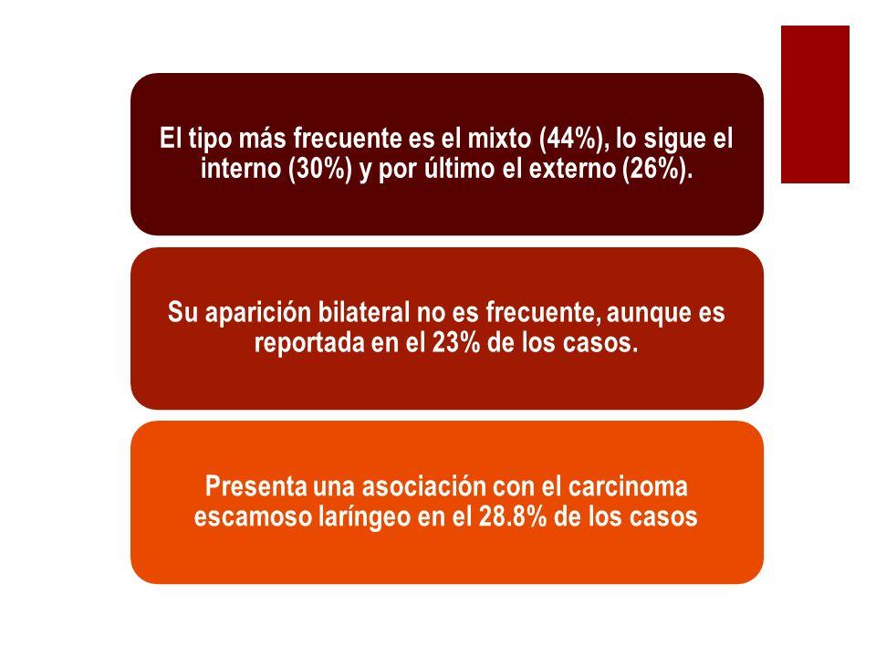 El tipo más frecuente es el mixto (44%), lo sigue el interno (30%) y por último el externo (26%). Su aparición bilateral no es frecuente, aunque es re