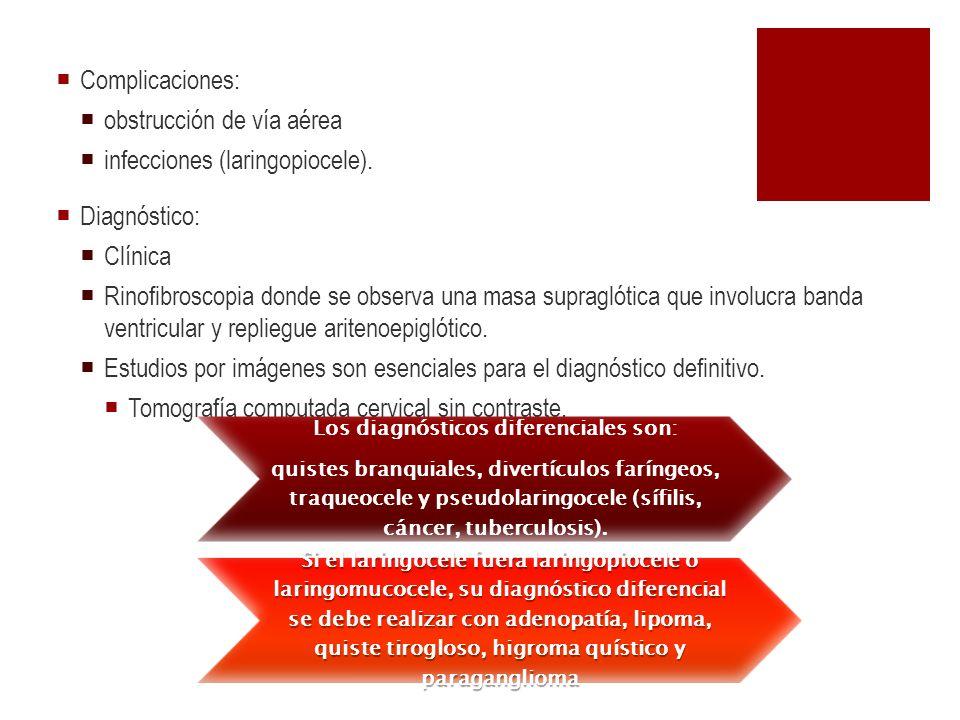 Complicaciones: obstrucción de vía aérea infecciones (laringopiocele). Diagnóstico: Clínica Rinofibroscopia donde se observa una masa supraglótica que
