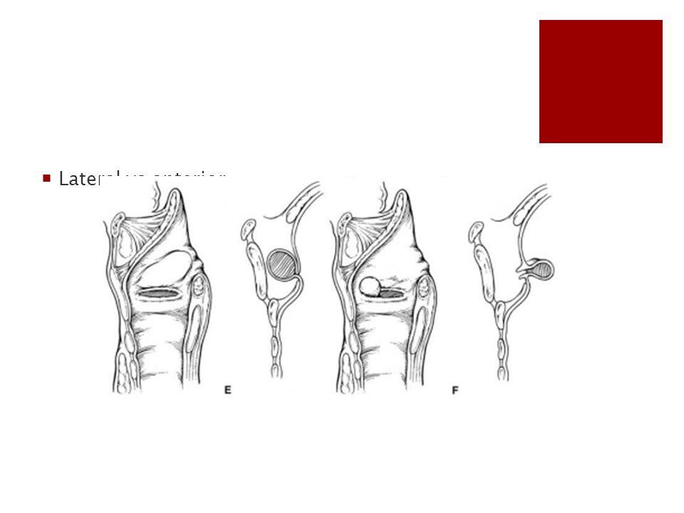Lateral vs anterior