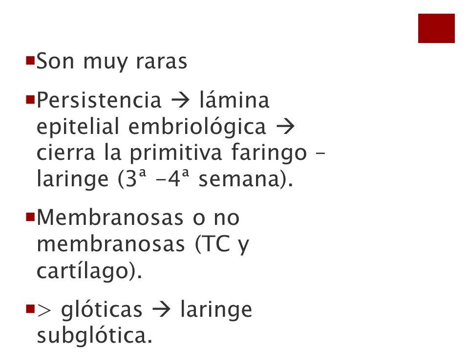 Son muy raras Persistencia lámina epitelial embriológica cierra la primitiva faringo – laringe (3ª -4ª semana). Membranosas o no membranosas (TC y car
