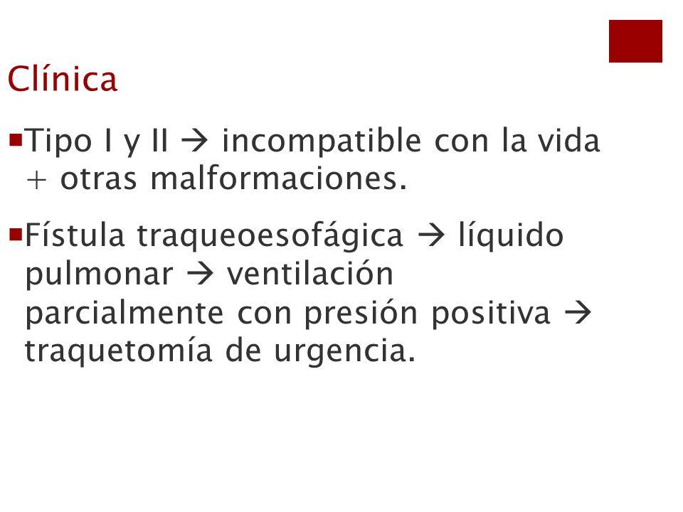 Clínica Tipo I y II incompatible con la vida + otras malformaciones. Fístula traqueoesofágica líquido pulmonar ventilación parcialmente con presión po