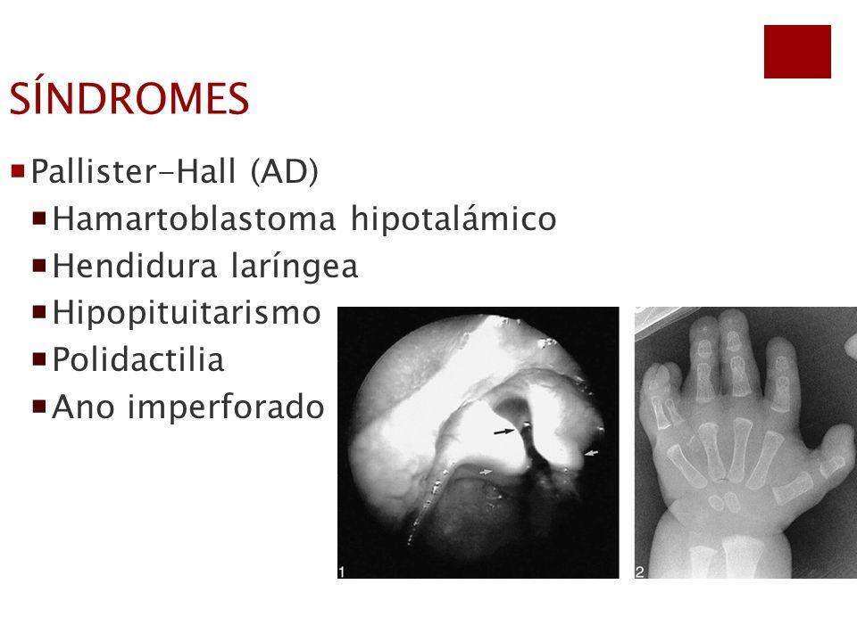 SÍNDROMES Pallister-Hall (AD) Hamartoblastoma hipotalámico Hendidura laríngea Hipopituitarismo Polidactilia Ano imperforado