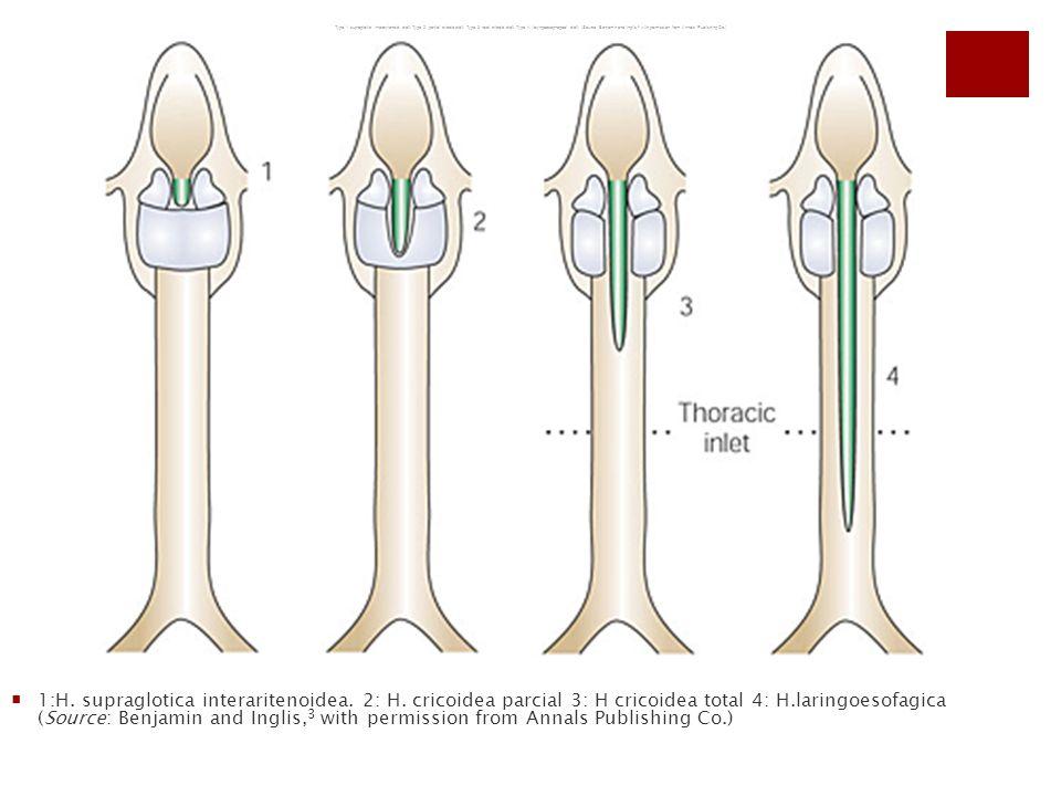 1:H. supraglotica interaritenoidea. 2: H. cricoidea parcial 3: H cricoidea total 4: H.laringoesofagica (Source: Benjamin and Inglis, 3 with permission