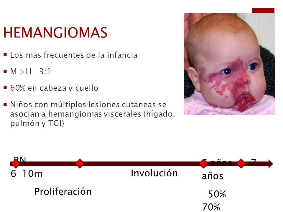 HEMANGIOMAS Los mas frecuentes de la infancia M >H 3:1 60% en cabeza y cuello Niños con múltiples lesiones cutáneas se asocian a hemangiomas viscerale