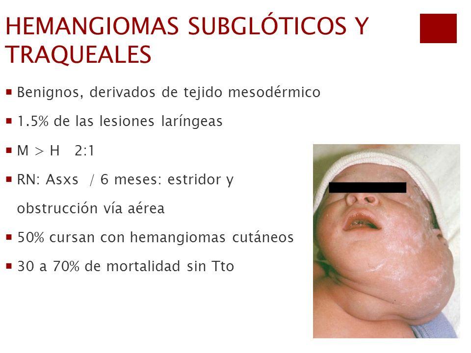 HEMANGIOMAS SUBGLÓTICOS Y TRAQUEALES Benignos, derivados de tejido mesodérmico 1.5% de las lesiones laríngeas M > H 2:1 RN: Asxs / 6 meses: estridor y