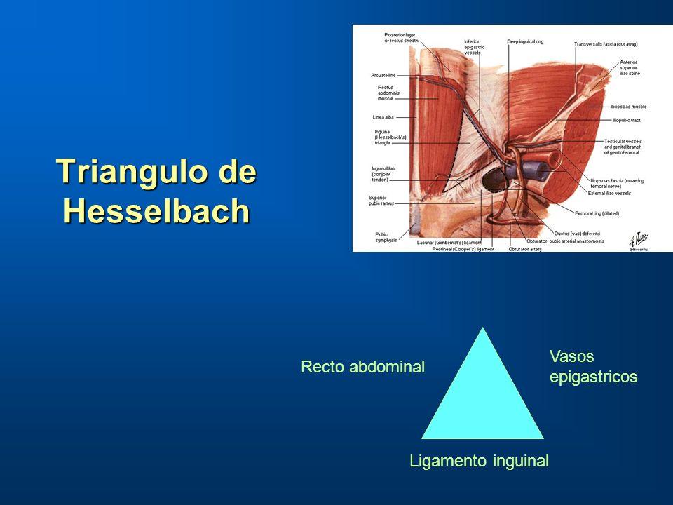 Triangulo de Hesselbach Triangulo de Hesselbach Ligamento inguinal Recto abdominal Vasos epigastricos