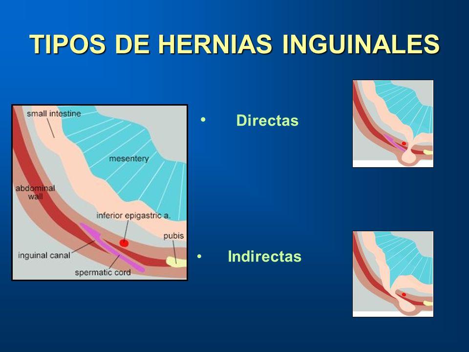 TIPOS DE HERNIAS INGUINALES Directas Indirectas