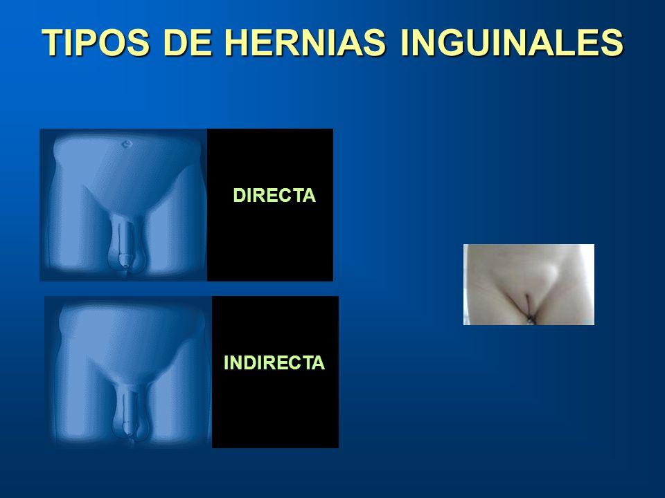 DIRECTA TIPOS DE HERNIAS INGUINALES INDIRECTA