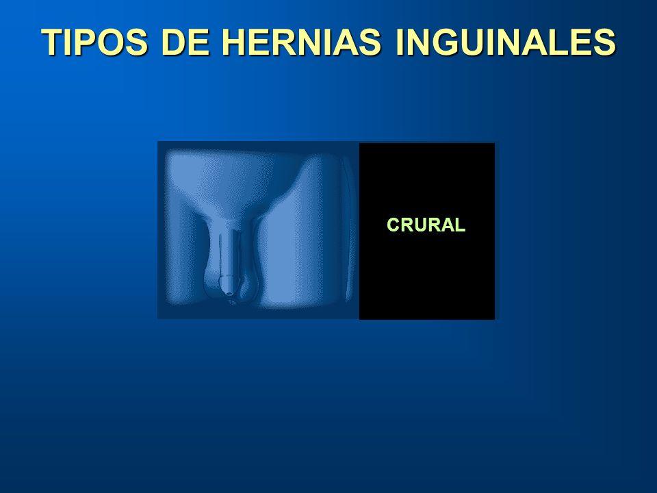 FEMORAL O CRURAL TIPOS DE HERNIAS INGUINALES CRURAL
