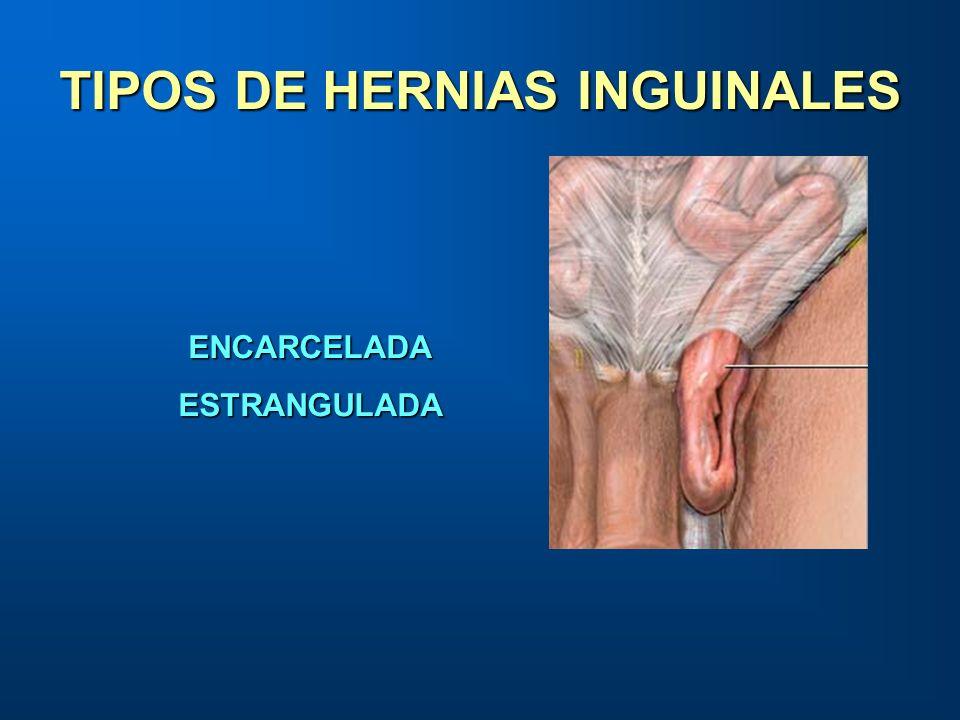TIPOS DE HERNIAS INGUINALES ENCARCELADAESTRANGULADA