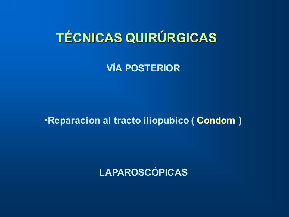 VÍA POSTERIOR Reparacion al tracto iliopubico ( Condom ) LAPAROSCÓPICAS