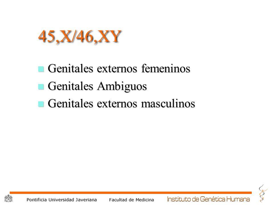 ® 45,X/46,XY n Genitales externos femeninos n Genitales Ambiguos n Genitales externos masculinos