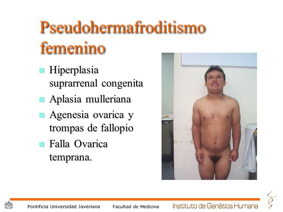 ® Pseudohermafroditismo femenino n Hiperplasia suprarrenal congenita n Aplasia mulleriana n Agenesia ovarica y trompas de fallopio n Falla Ovarica tem