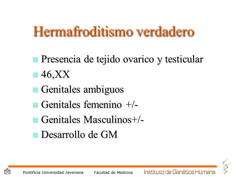 ® Hermafroditismo verdadero n Presencia de tejido ovarico y testicular n 46,XX n Genitales ambiguos n Genitales femenino +/- n Genitales Masculinos+/-