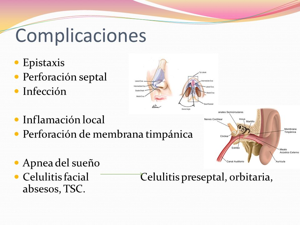 Complicaciones Epistaxis Perforación septal Infección Inflamación local Perforación de membrana timpánica Apnea del sueño Celulitis facial Celulitis p