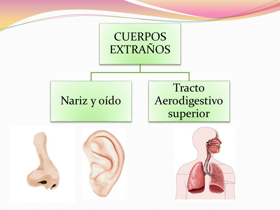 CUERPOS EXTRAÑOS Nariz y oído Tracto Aerodigestivo superior