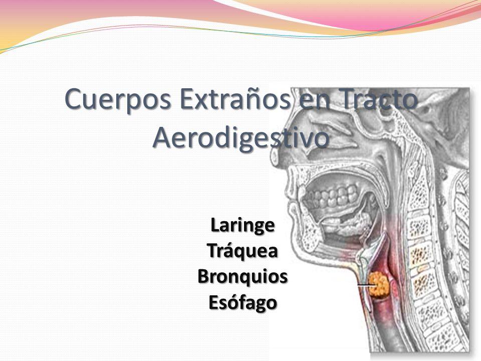 Cuerpos Extraños en Tracto Aerodigestivo