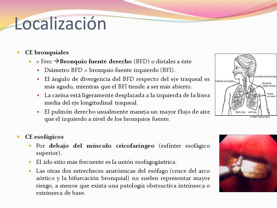 Localización CE bronquiales > Frec Bronquio fuente derecho (BFD) o distales a éste Diámetro BFD > bronquio fuente izquierdo (BFI). El ángulo de diverg