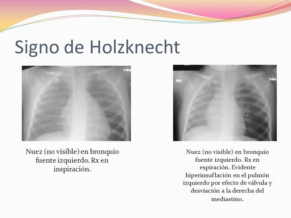 Signo de Holzknecht Nuez (no visible) en bronquio fuente izquierdo. Rx en inspiración. Nuez (no visible) en bronquio fuente izquierdo. Rx en espiració